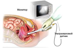 формы женских половых органов фото