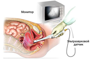 Вид женских органов фото фото 248-472